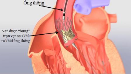 Thay van tim qua ống thông giúp rút ngắn thời gian điều trị
