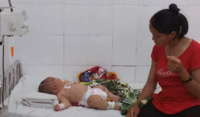 Đắk Lắk: Bé trai năm tháng tuổi nghi nhiễm não mô cầu