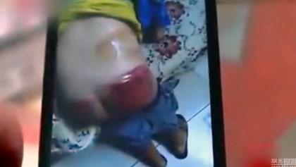 Giáo viên đánh bầm mông học sinh vì không làm bài tập về nhà