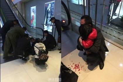 Bé gái Trung Quốc bị thang cuốn 'nghiền' đứt ngón tay