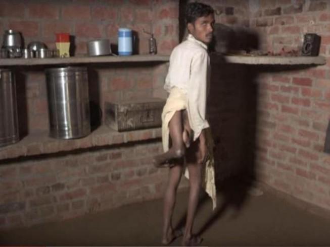Hi hữu chàng trai Ấn Độ có 4 chân