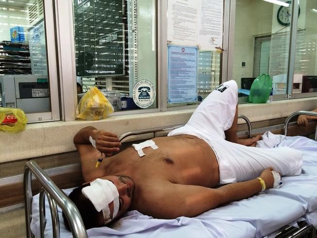 1 người nước ngoài bị cướp đâm trọng thương