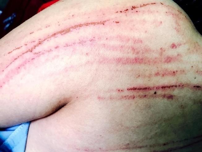 Đề nghị khởi tố vụ nữ luật sư bị đánh tại tòa