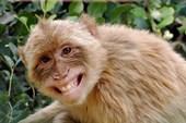 Bé 4 tuổi suýt mù do bị  khỉ cắn