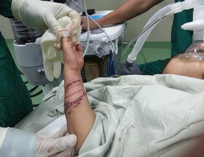 Bé trai bốn tuổi bị cá sấu cắn nát tay