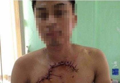Cứu sống bệnh nhân bị tai nạn, tim phổi lộ ra ngoài thành ngực