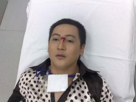 Diễn viên Phi Long bị chấn thương khi quay phim