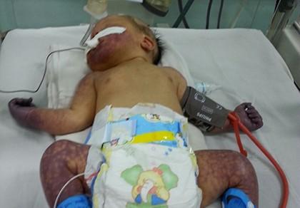 Cứu sống bệnh nhi sơ sinh bị tắc mạch tứ chi