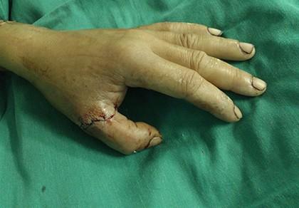 Nối lại thành công hai ngón tay bị cưa máy gỗ cắt đứt