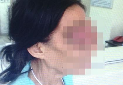 Người phụ nữ không ngửi được mùi do ung thư hốc mũi