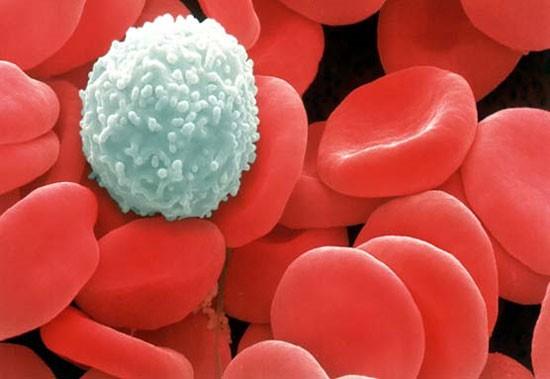 70%-80% trẻ em mắc ung thư máu có thể được chữa khỏi