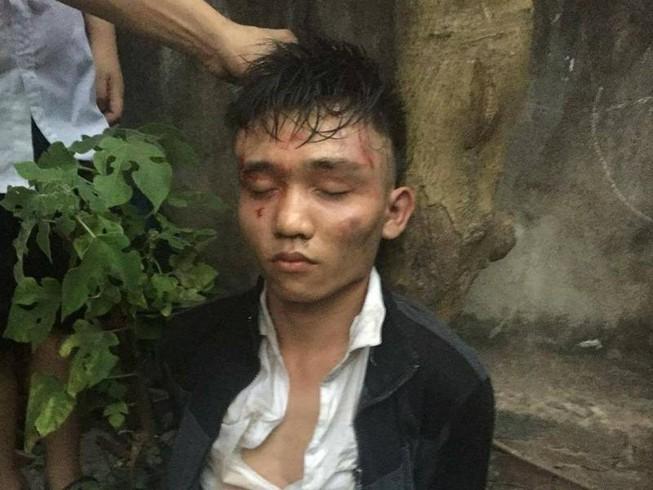 Hà Nội: Táo tợn dùng dao tấn công chủ quán cướp tài sản