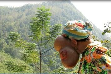 Nữ bệnh nhân mang khối u 3 kg trên mặt về Hà Nội chữa bệnh