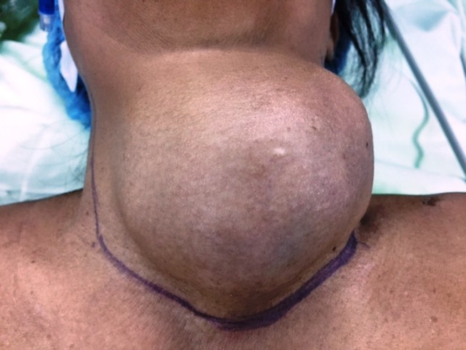 Mổ lấy khối u tuyến giáp 1,2 kg ra khỏi cổ bệnh nhân