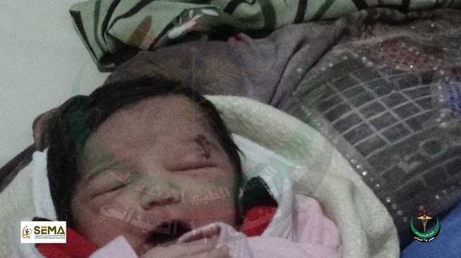 Kỳ diệu bé gái chào đời với mảnh đạn ghim vào đầu