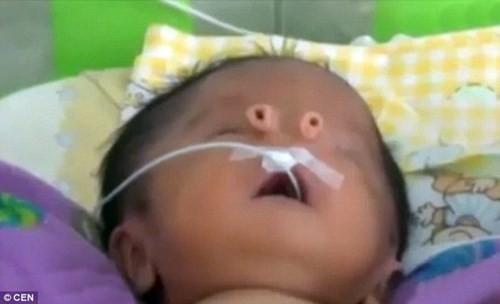 Kỳ lạ em bé sinh ra với hai cái mũi