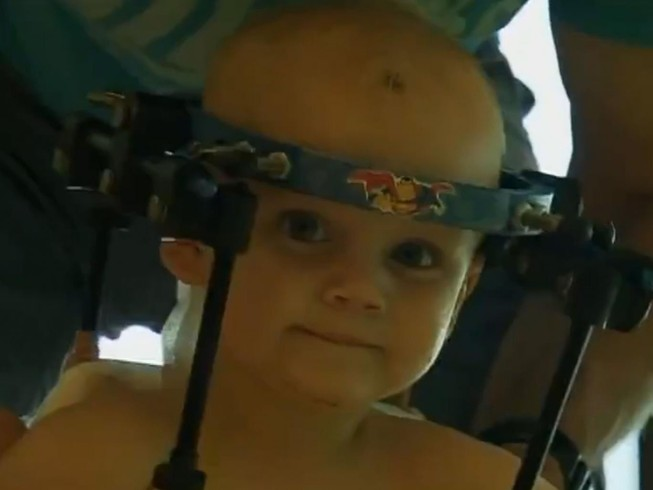 Phẫu thuật ghép đầu thành công cho bé trai một tuổi