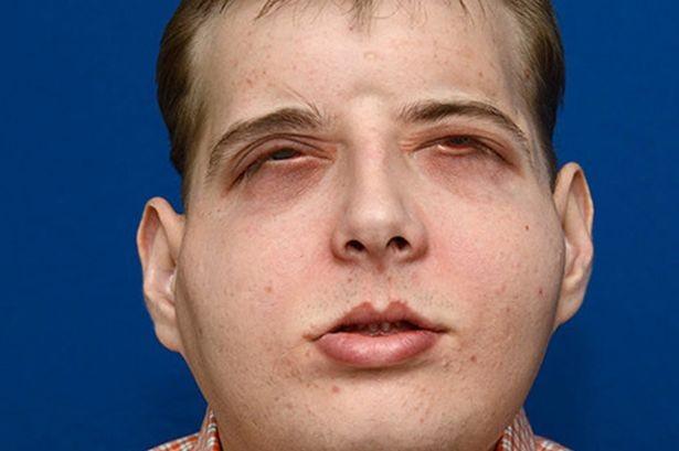 Người đàn ông 70 lần phẫu thuật tái tạo bộ mặt