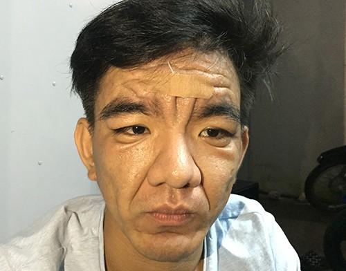 Chàng trai 23 tuổi hóa ông già 60