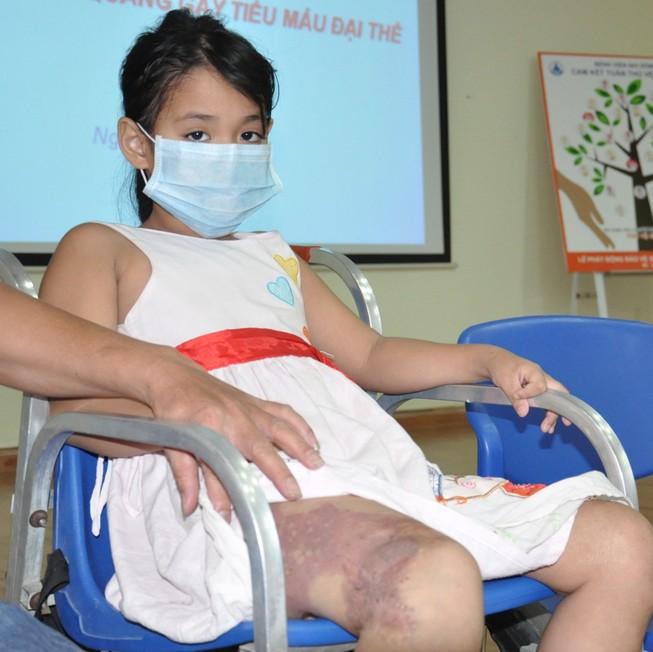 Hi hữu bệnh nhi bị chảy máu vào bàng quang