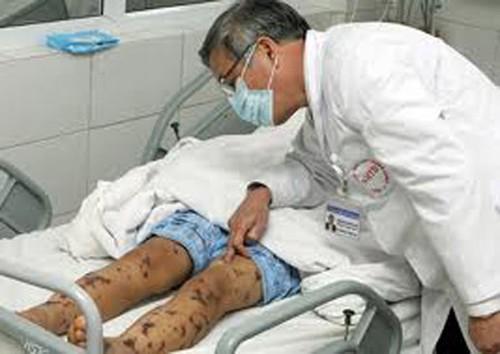 Cục Y tế dự phòng cảnh báo bệnh viêm não mô cầu