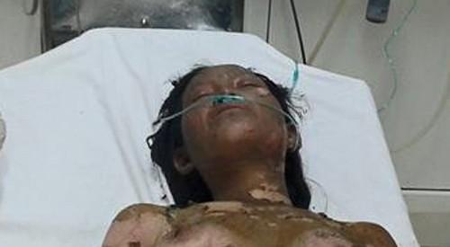 Tưới xăng đốt chết con, vợ bỏng nặng