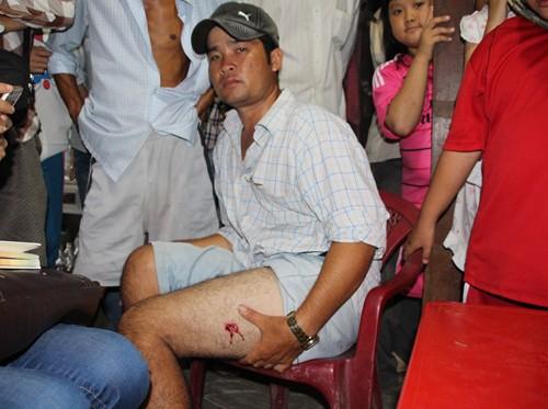 Nổ súng bắt sòng bầu cua, một người bị thương