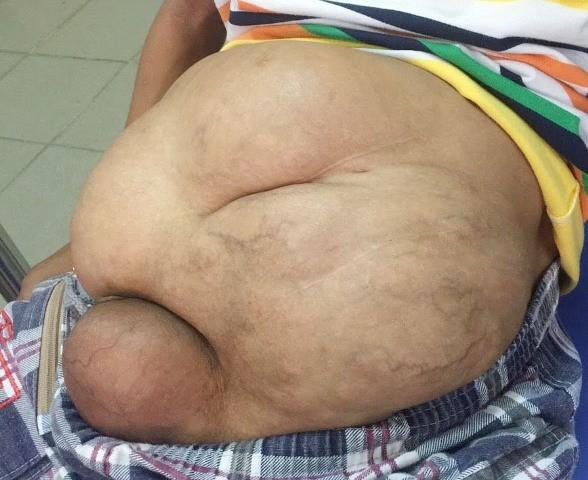 Khối bướu 4,3 kg biến bé trai đi tiểu giống… bé gái