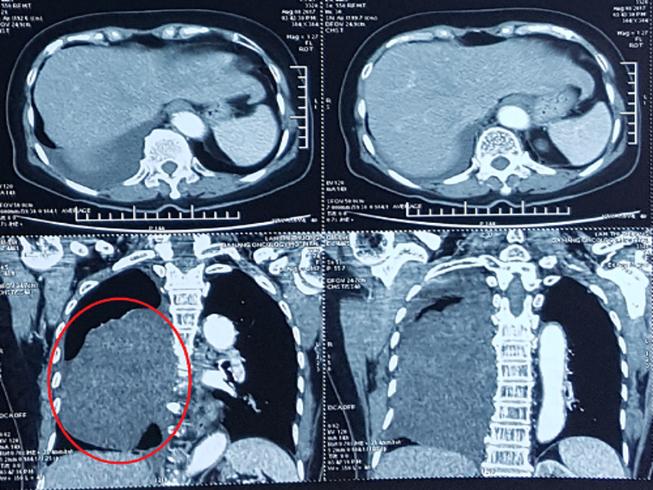 Cắt bỏ khối u 'khủng' chèn lệch tim bệnh nhân