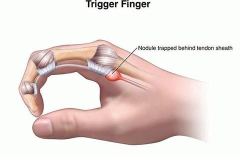 Bệnh viêm bao gân gấp ngón tay