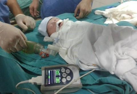 Mổ bắt con từ thai phụ bị bỏng 98%