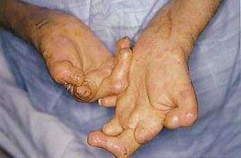 TP.HCM sẽ loại trừ bệnh phong trong năm nay