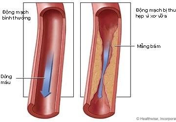 Mối nguy về calcium trong động mạch vành