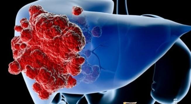 Một nửa số người ung thư gan hết khả năng điều trị
