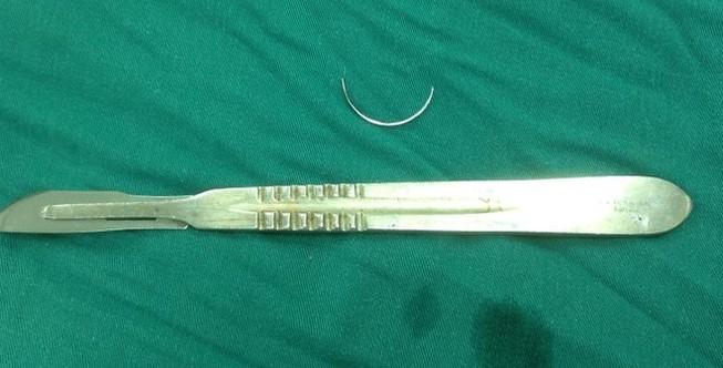 Lấy cây kim nằm trong bụng bệnh nhân suốt 15 năm