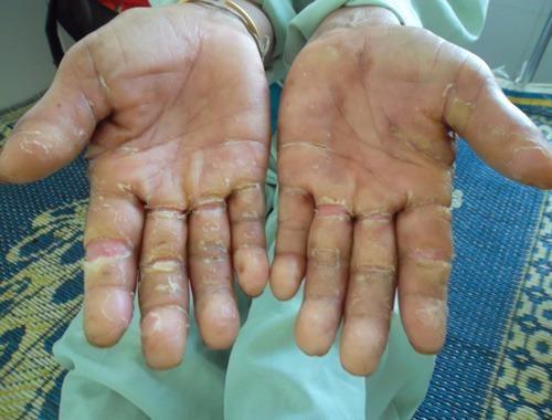 Hội chứng viêm da dày sừng chết người có nguy cơ trở lại
