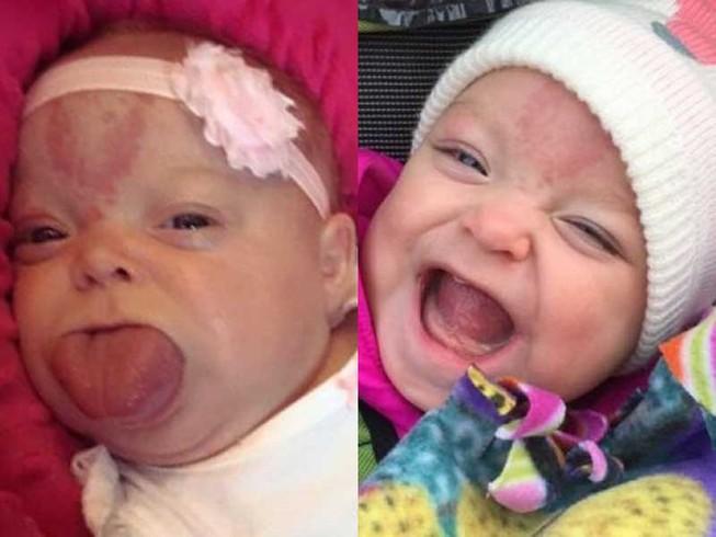 Cô bé lưỡi to đã có nụ cười đầu tiên