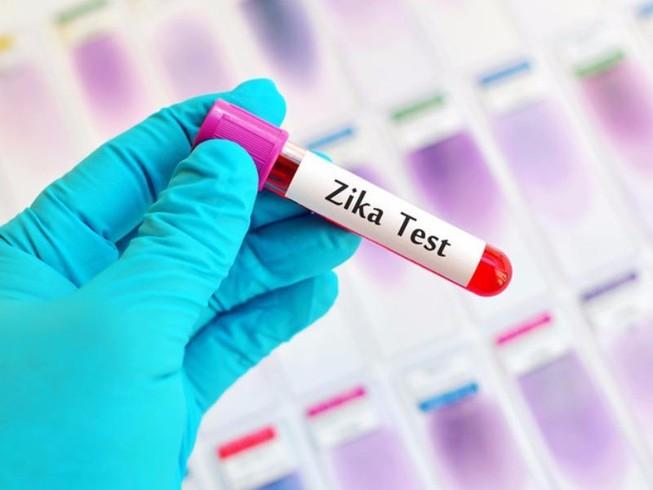 TP.HCM có 38 người nhiễm virus Zika