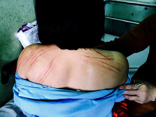 Nữ luật sư bị đánh tại tòa chấn thương sọ não