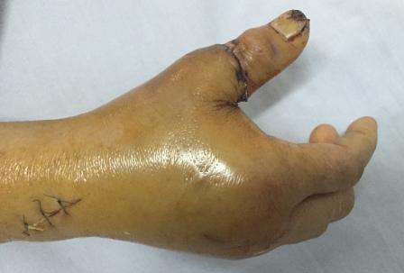 Nối thành công ngón tay cái đứt lìa, rút gân 20 cm