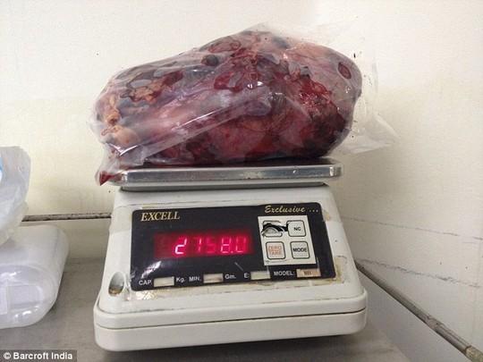 Cắt bỏ quả thận nặng gần 3 kg