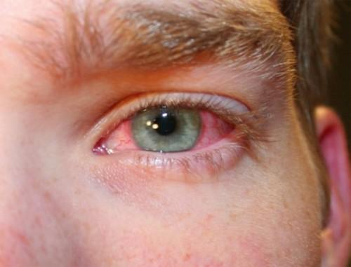 Phòng và chữa bệnh đau mắt đỏ đúng cách