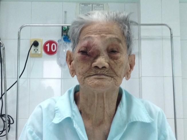 Phẫu thuật u hốc mắt cho Mẹ Việt Nam Anh hùng 101 tuổi