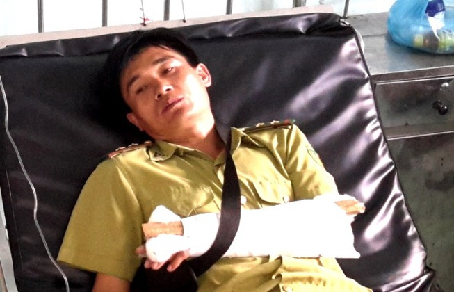 Cán bộ kiểm lâm bị đánh gãy tay khi bảo vệ hiện trường