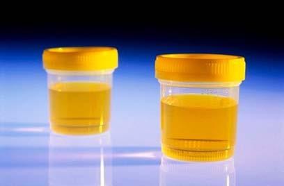Xét nghiệm nước tiểu có thể phát hiện ung thư