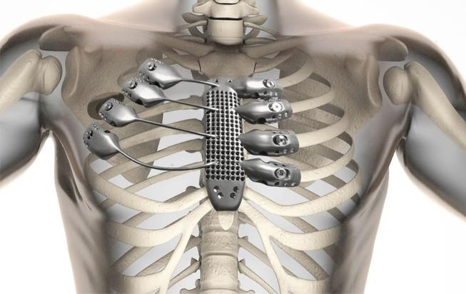 In xương lồng ngực bằng kỹ thuật 3D