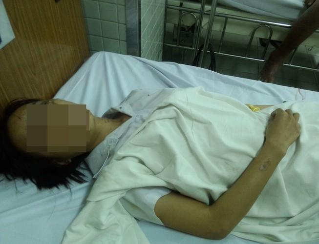 2 nữ sinh bị tạt acid, một người bỏng nặng