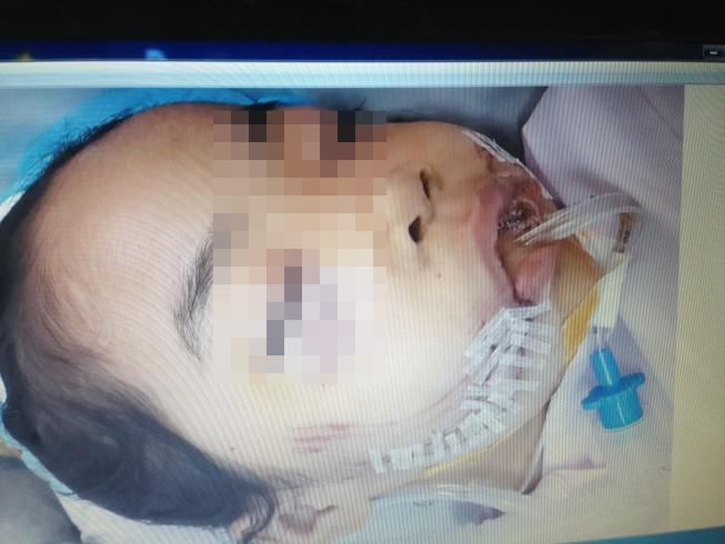 Lại một trẻ bị chó cắn nát mặt phải khâu hơn 200 mũi