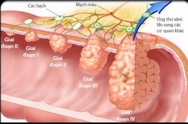 Dấu hiệu vàng cảnh báo sớm bệnh ung thư đại trực tràng