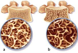 Phân biệt bệnh nhuyễn xương và loãng xương